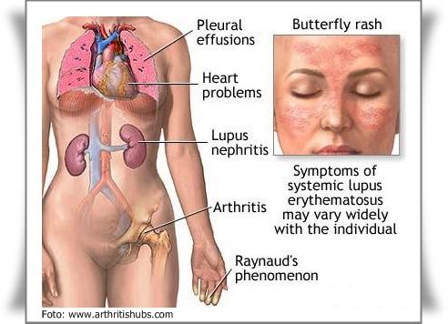 Penyakit lupus atau erythematosus merupakan penyakit kronis yang